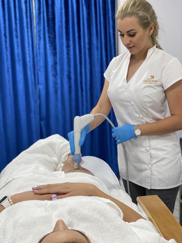 cellulit stria kezelés